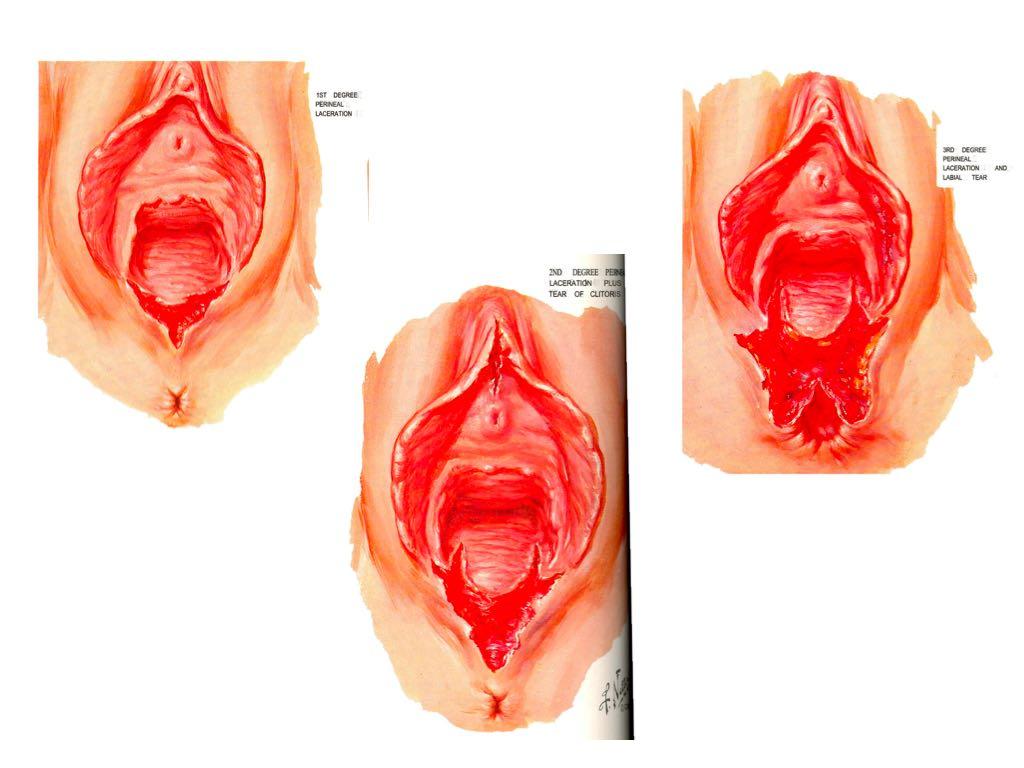 anal sphincter trauma 2015.006.jpg
