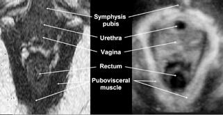 fig 1 3D-4D Ultrasound.jpg