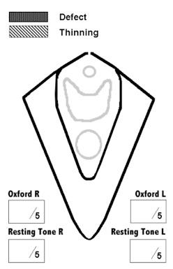 Clinical levator assessment fig 3.jpg