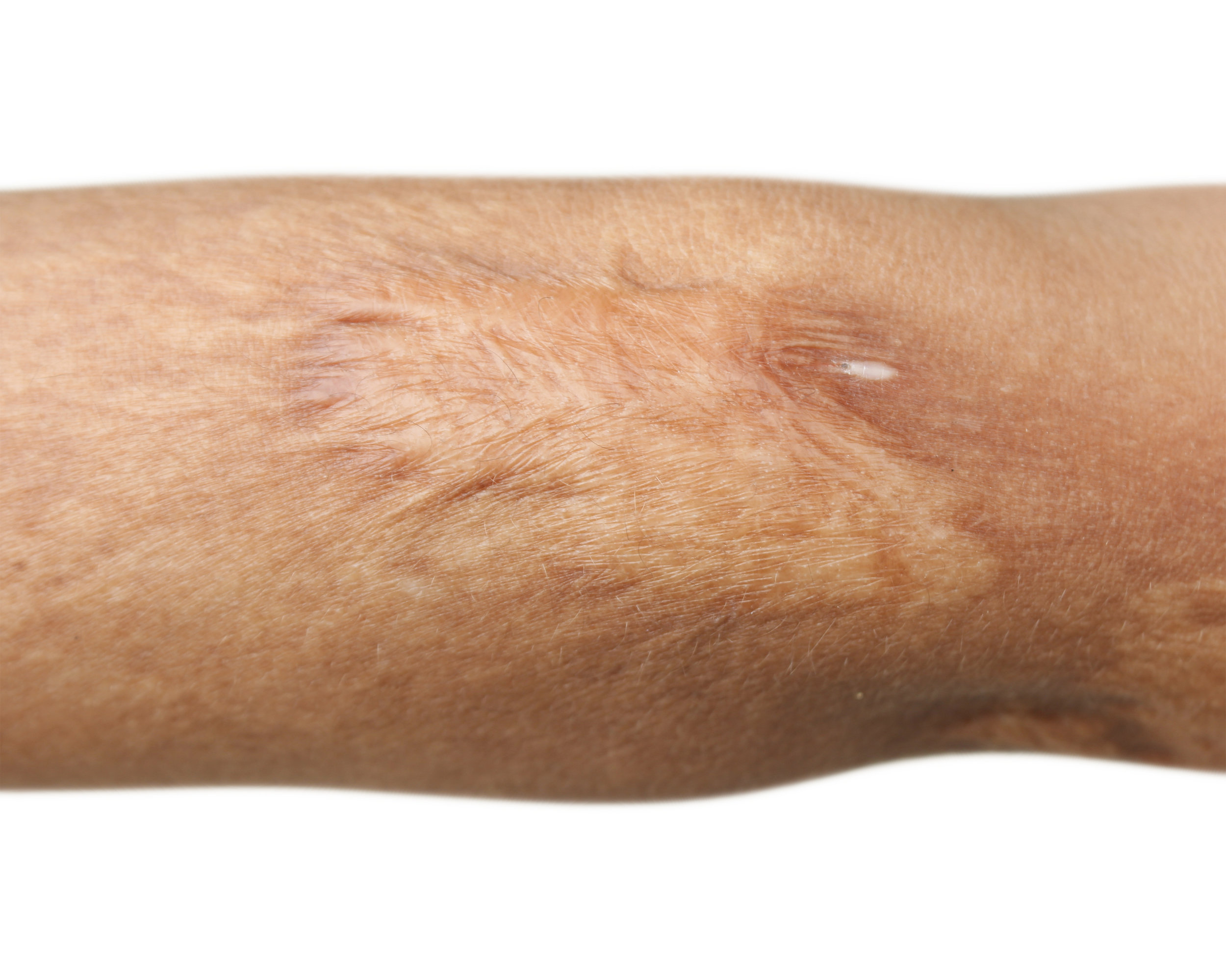 LOOK AND FEEL:   Severe burns can cause loss of skin. The result is weblike in texture and marbelized in color.
