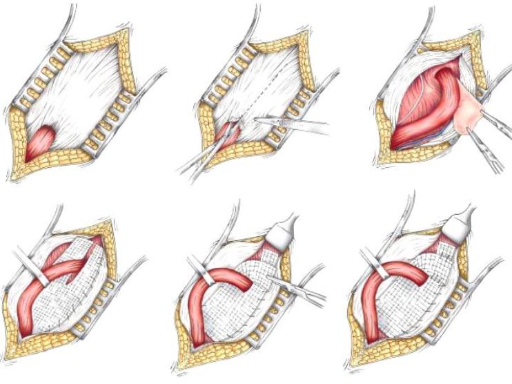 hernia-surgery-santa-barbara