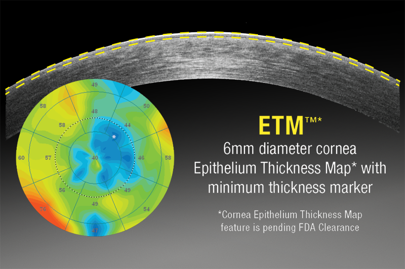 epithelial-thickness-mapping.png