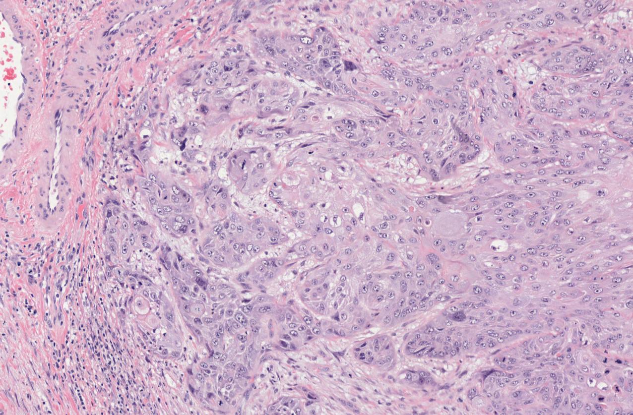 SCCa vulva c_477.jpeg