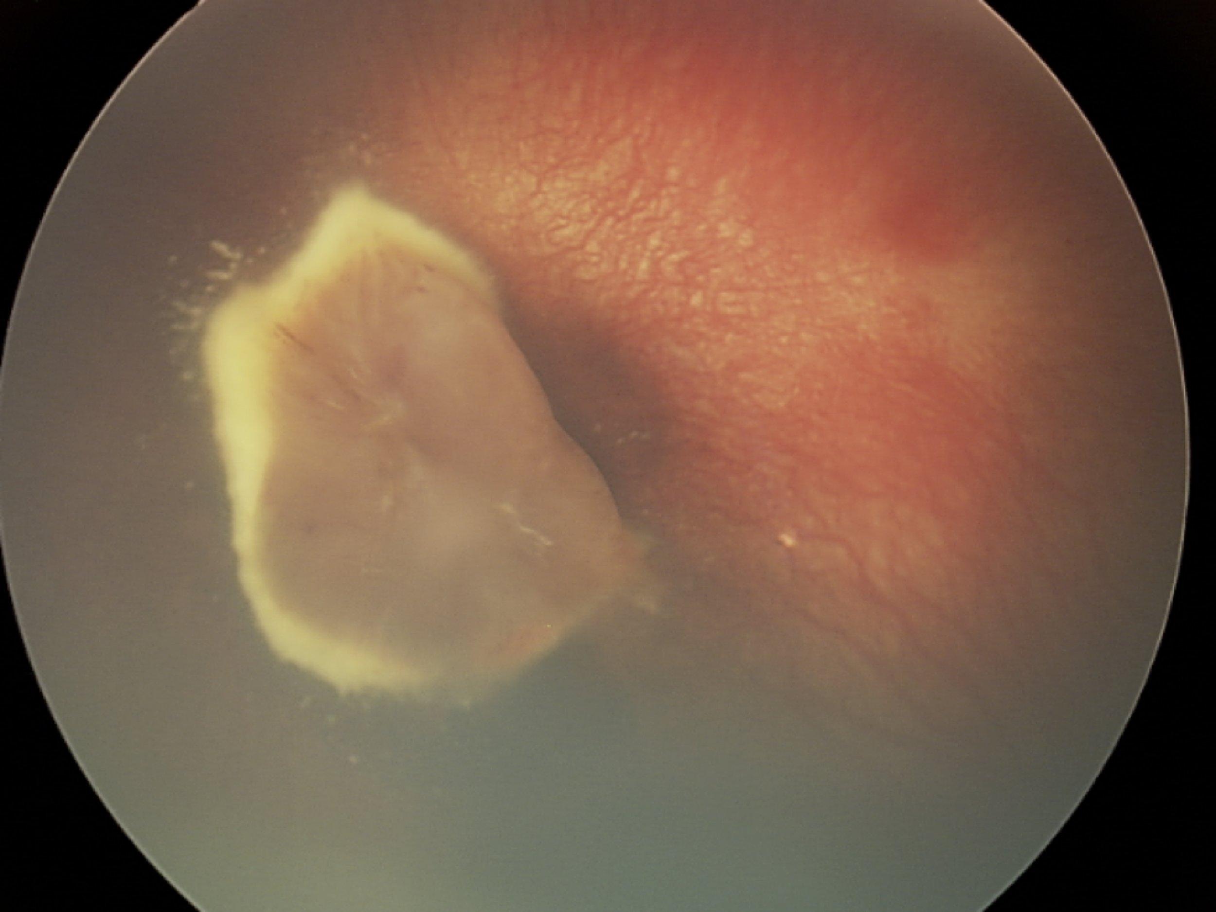 Norrie Disease