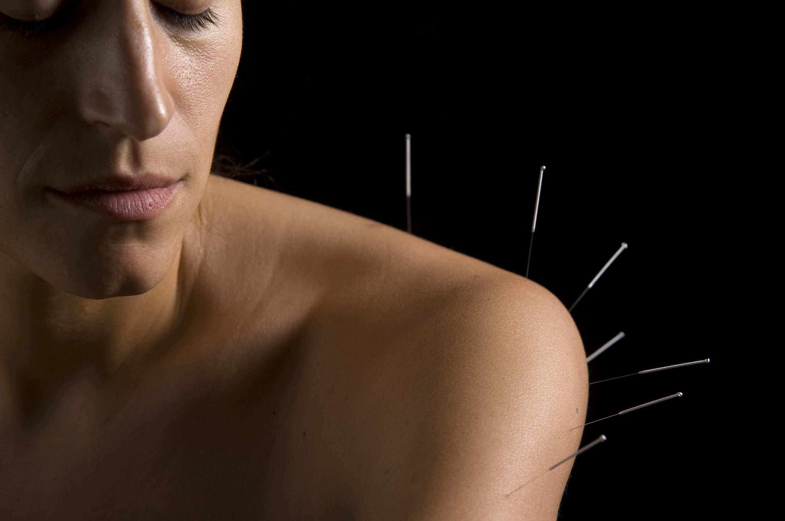 P-acupuncture-shoulder.jpg