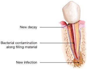 endodontic-retreatment-tooth-infection-300x237.jpg
