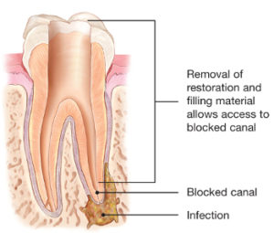 endodontic-retreatment-root-canals-300x255.jpg