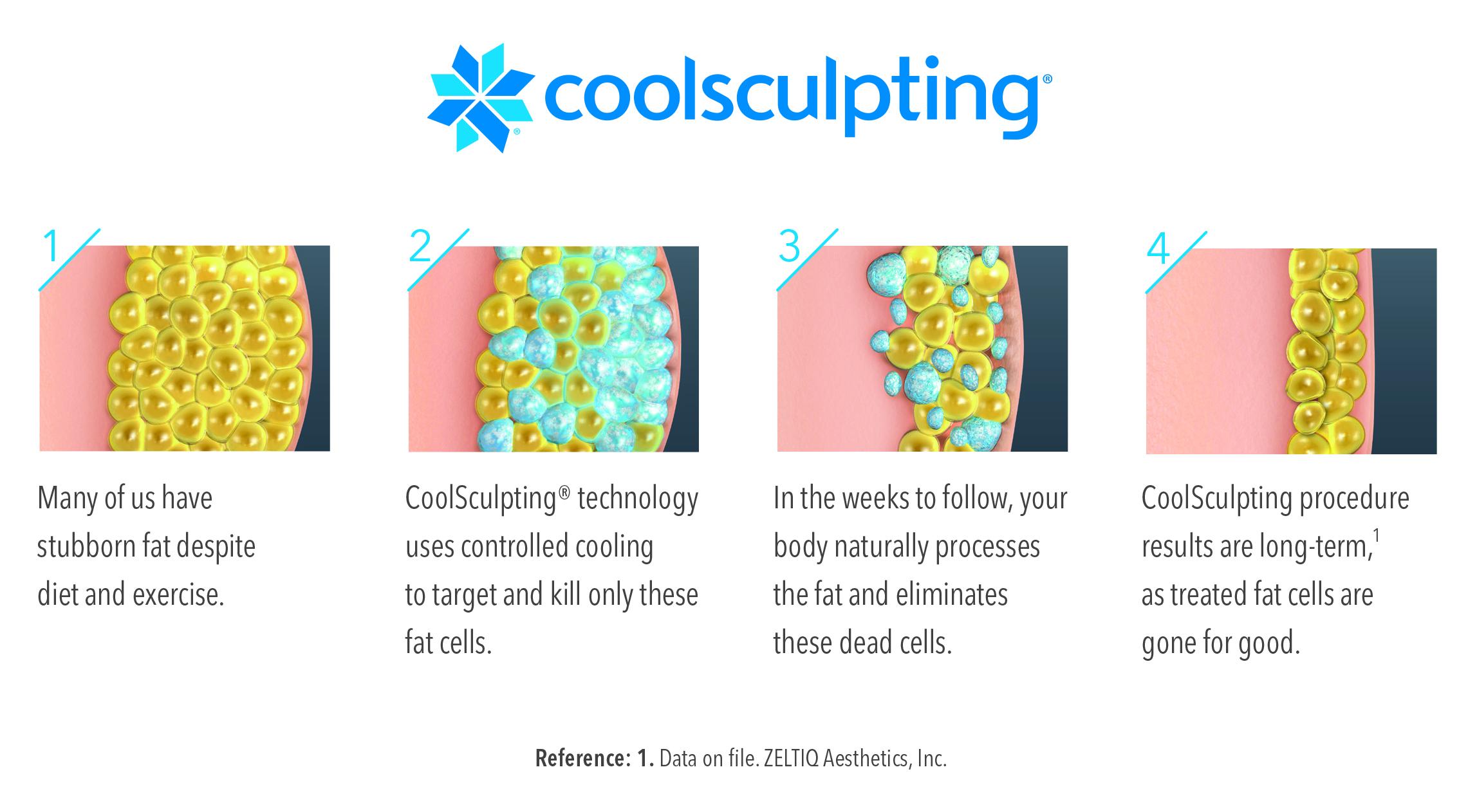 coolsculpting illustration