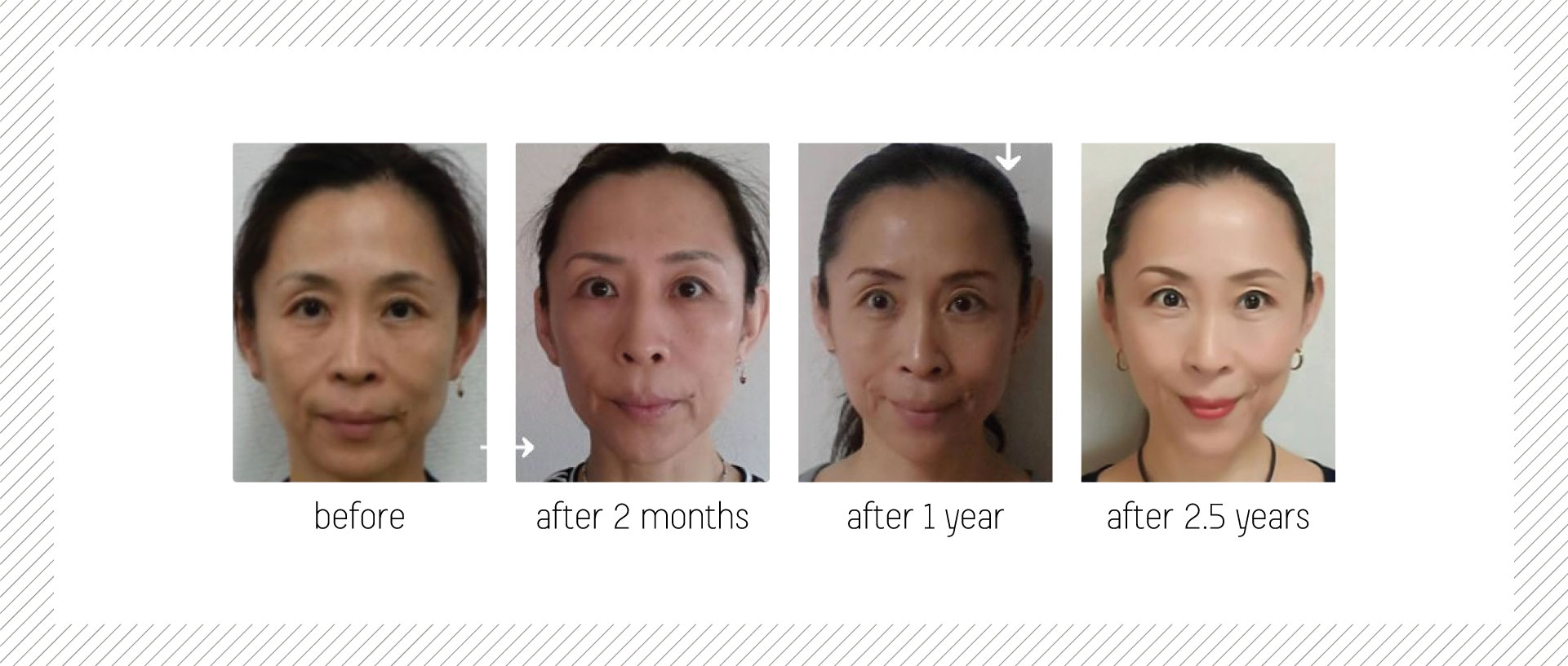 skin-fit-gym_home_before-and-after-01.1.jpg