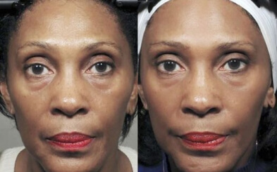 Face Yoga before and after proved results