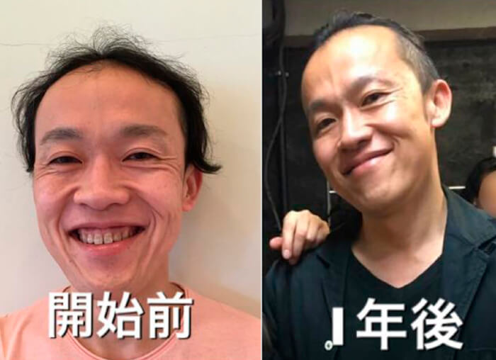 Face Yoga result only in 1 year by a Japanese male