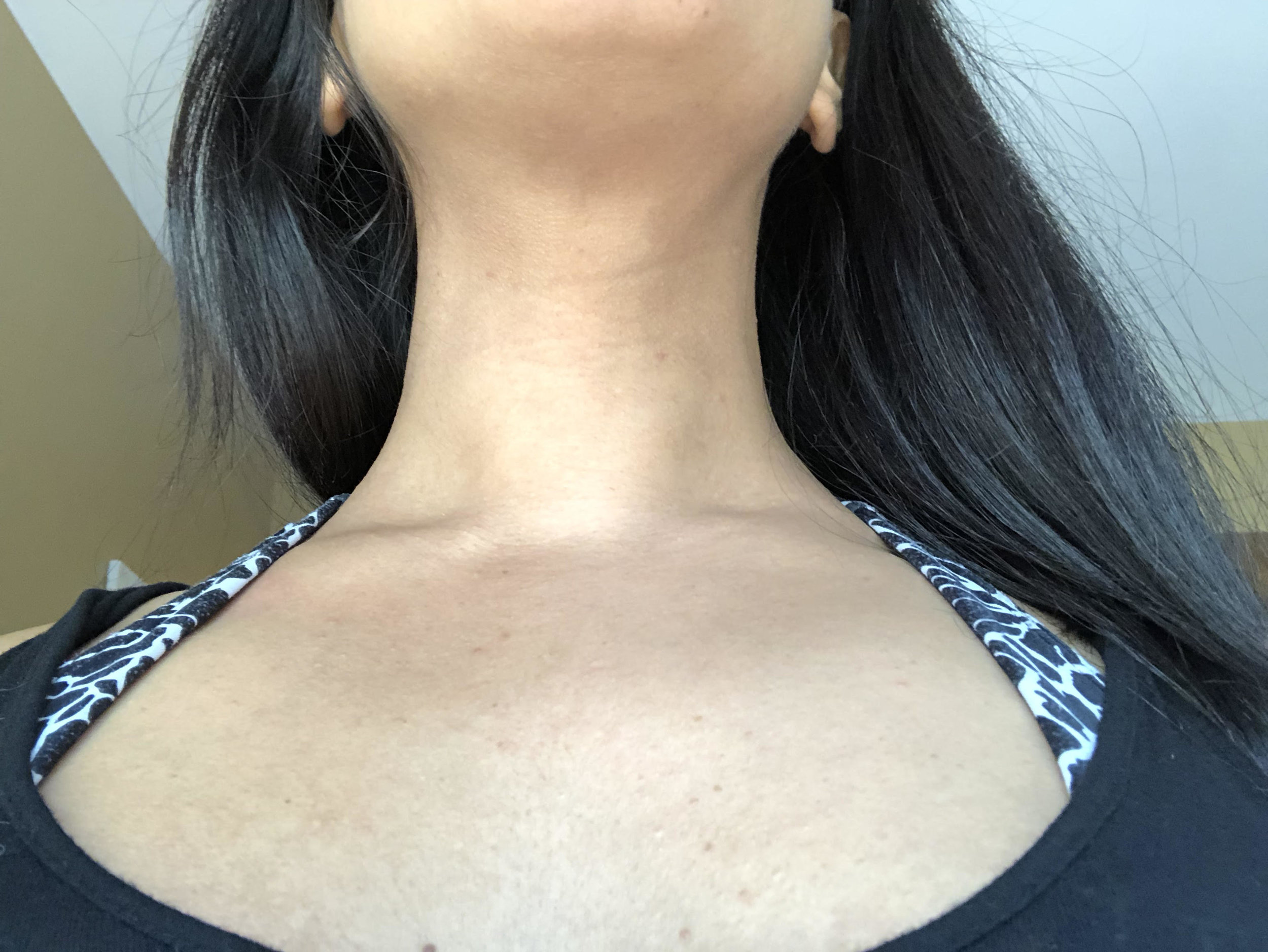 5 weeks after surgery: The continued local cryotherapy treatments have helped heal Jade's neck and chest area.