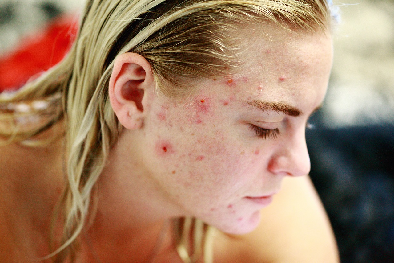 why-do-I-still-have-acne