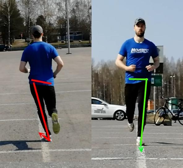 Vasemmalla huono jalkaterä-polvi-lonkka -sivusuunnan linjaus. Huomaa lisäksi lantion kallistuminen ja jalkaterän osoittaminen sivulle. Oikealla parempi linjaus, lantion tasapainoinen asento ja jalkaterä osoittaa menosuuntaan.