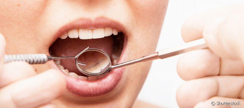 13259-o-tartaro-ja-e-um-problema-para-os-dente-slider_medias-1.jpg