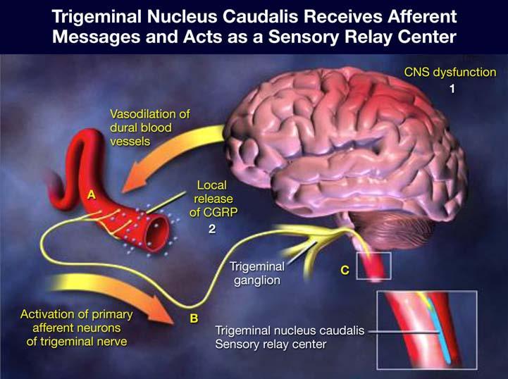Migraineur-Fall-2017-diagram.jpg