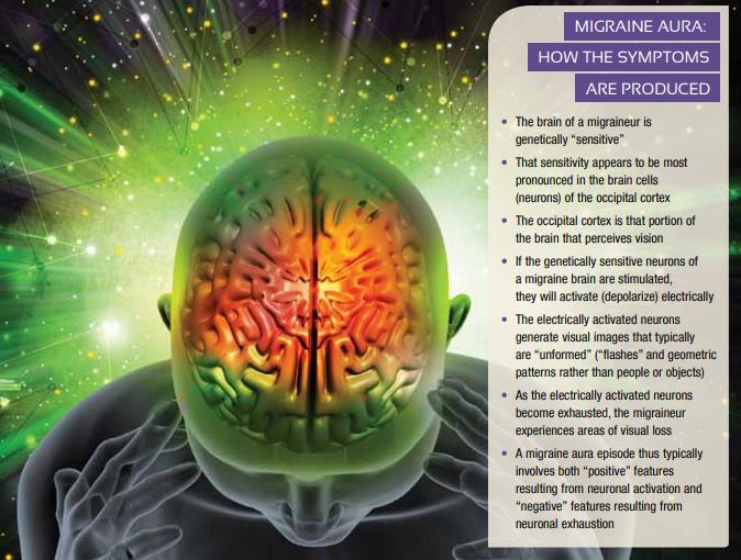 migraine-aura.png