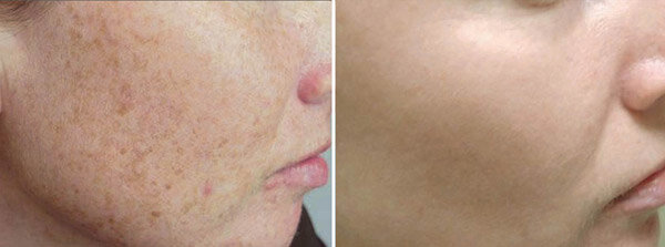 skin-renew-before-after.jpg