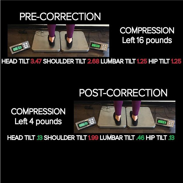 🔗🔗🔗 When it comes to the body there are normal levels.  Whether it's body temperature or blood pressure the body has normal levels where it operates at optimal.  The same is true for alignment of the body. 1 degree of less of: ✅Head Tilt ✅Shoulder Tilt ✅Spinal Tilt ✅Hip Tilt Is when the body operates at optimal.  We measure the alignment though utilization of a multi-axial digital analysis system. This tells us how the body has broken down and how to correct it.  Following every correction we measure again making sure the alignment has improved.  Structure=Function . . . . . . . . . . . . .  #optimizecbus #datadrivenchiro #onlyincbus #performance #health #wellness #cbus #columbusohio #columbus #ohio #socolumbus #lifeincbus #asseenincolumbus #614 #navigatecolumbus #upperarlingtonohio #cbj #chiropractic #chiropractor #columbuschiropractor #prevention #science #datamatters #cbusbloggers#columbusbloggers #igerscolumbus #columbusalive #grandview