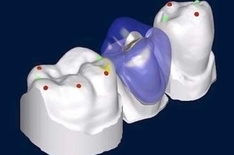 Exemple de couronnes dentaires réalisées grâce à la technologie CAD / CAM.