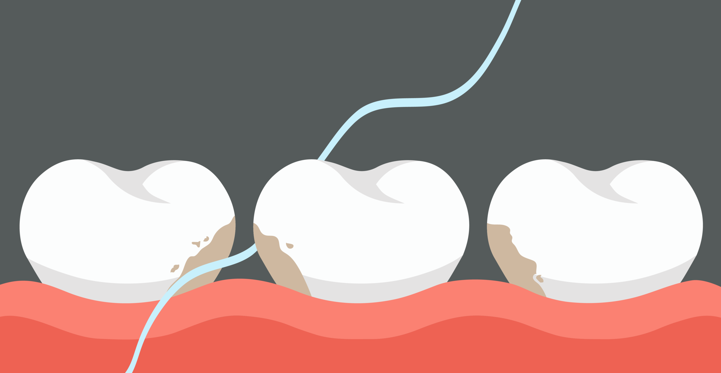 """Interdental cleaning (cleaning in between the teeth) is an important step to achieve overall good oral health. Research shows that the build up of germs in between the teeth can cause  gum disease, bad breath, and overtime can eventually lead to tooth loss; and increased risk of heart attacks, diabetes, and other serious health diseases. (  NIH Publication No. 13-1142. """"Periodontal (Gum) Disease: Causes, Symptoms, and Treatments."""" U.S National Library of Medicine. U.S. National Library of Medicine, 13 Sept. 2013. Web. 10 Oct. 2016.)"""