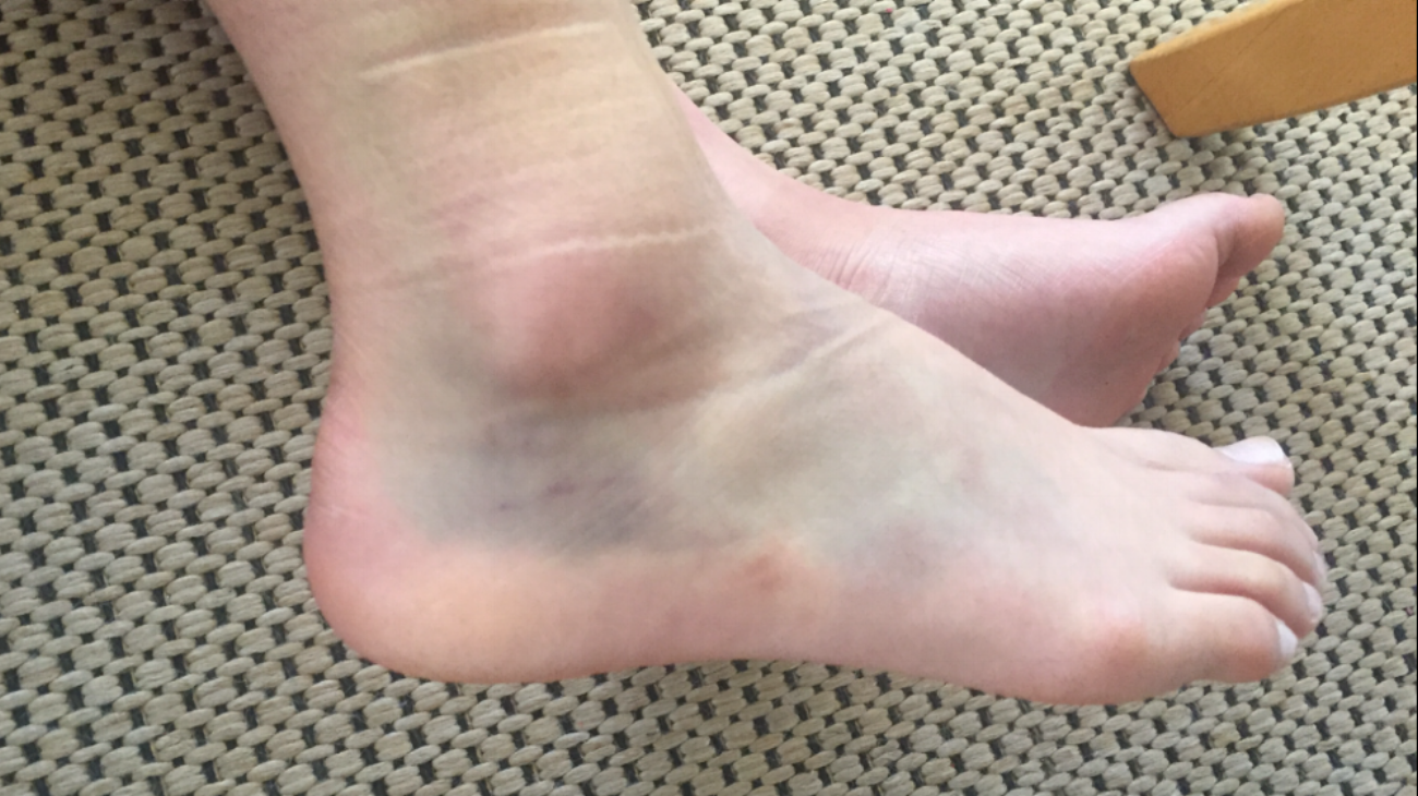 First week of ankle injury…Owww! On crutches and so hard to get around :( -