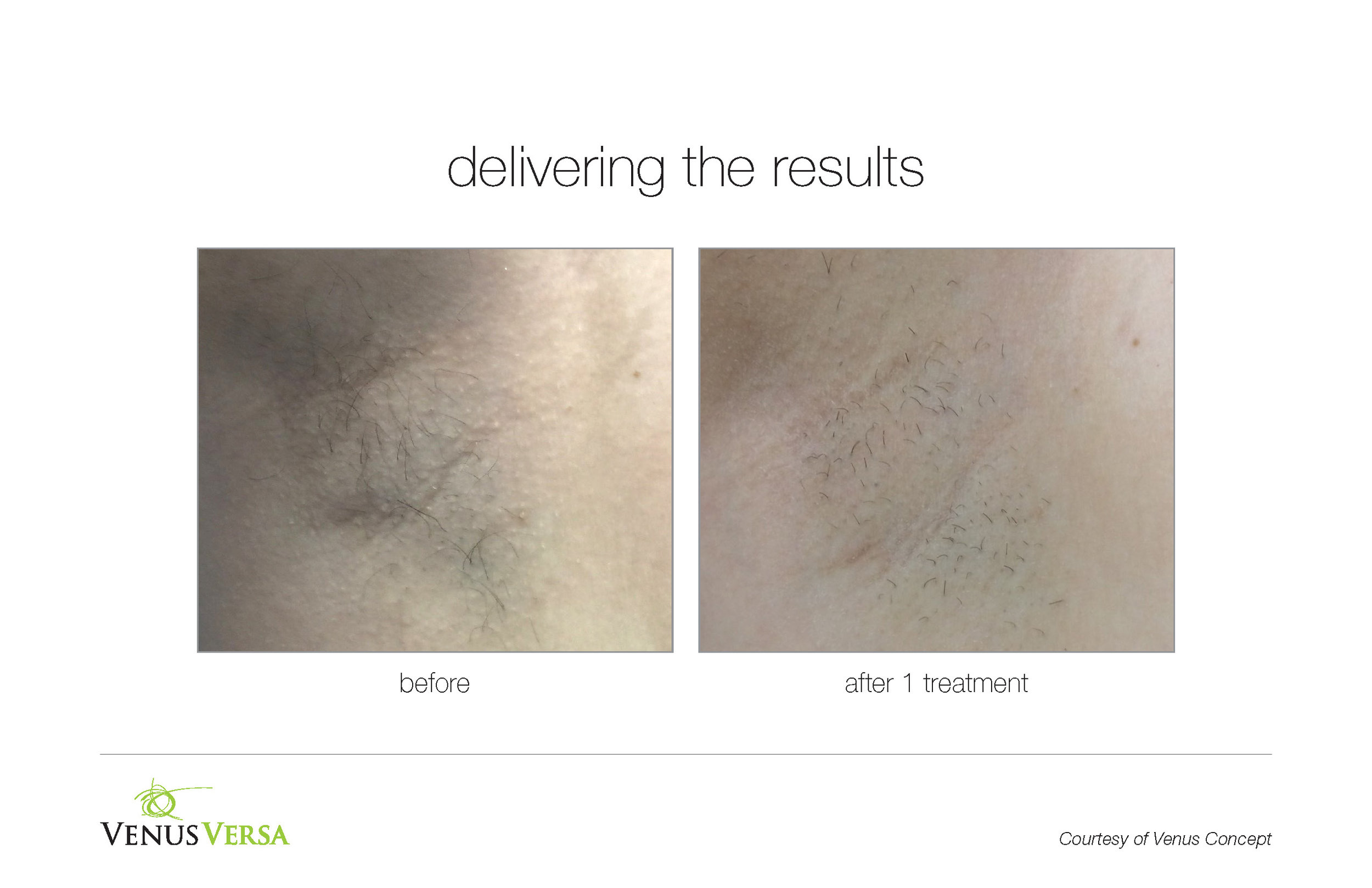 Underarm hair removal after 1 treatment