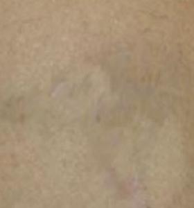 After Tattoo 1.jpg