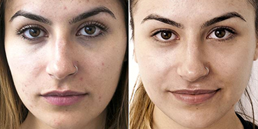 Laser Carbon Peel Before and After.jpg