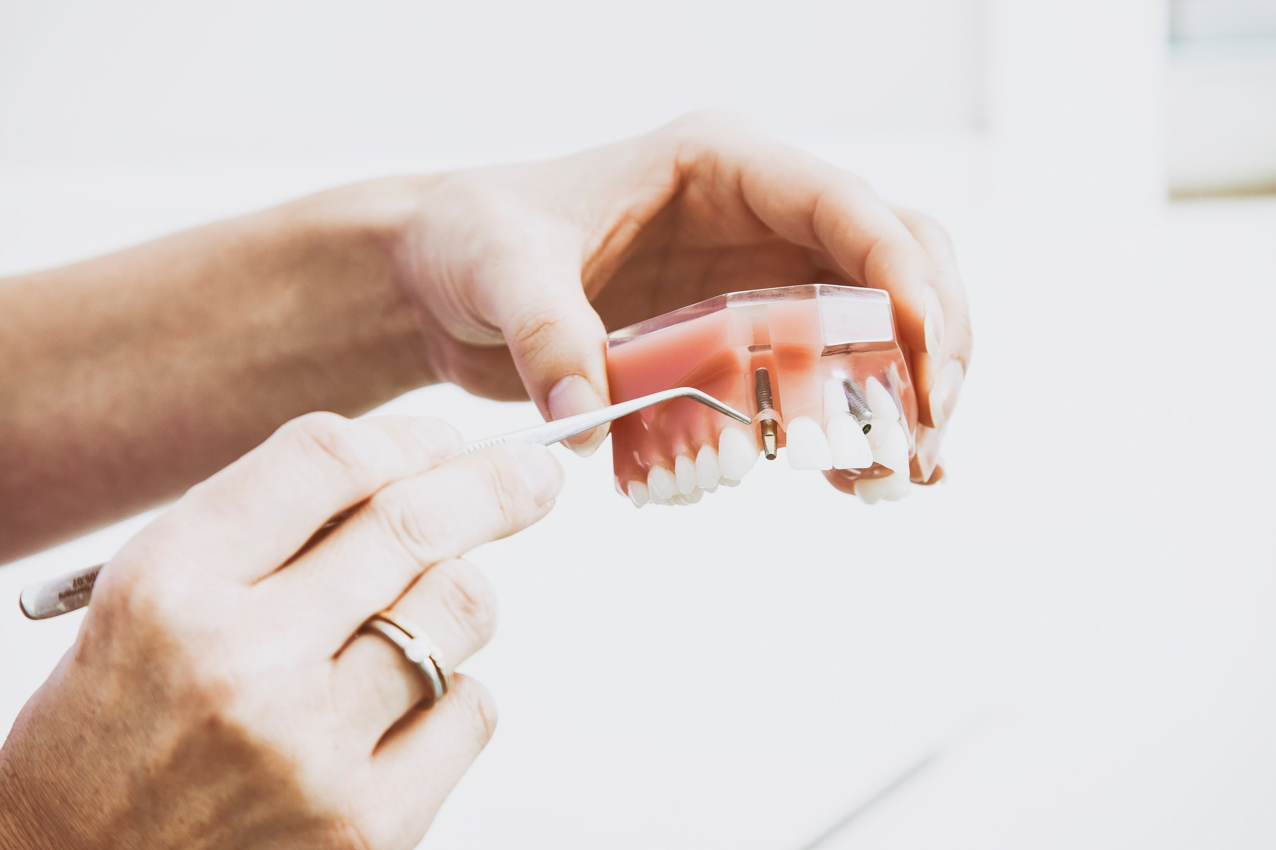 The Expert Care of Periodontists - Periodontists are uniquely qualified to treat a disease of the gum tissue and underlying bone in the mouth. With three additional years of specialized training after dental school, periodontists are masters of the treatment skills necessary for predictable and successful periodontal disease treatment.