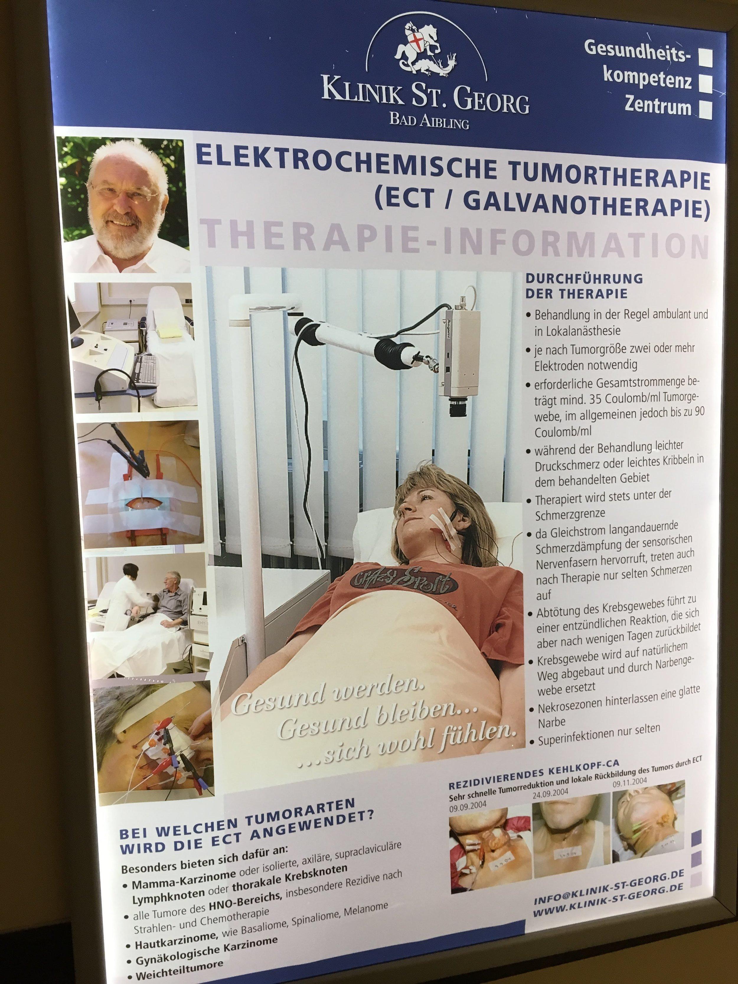ECT Treatment