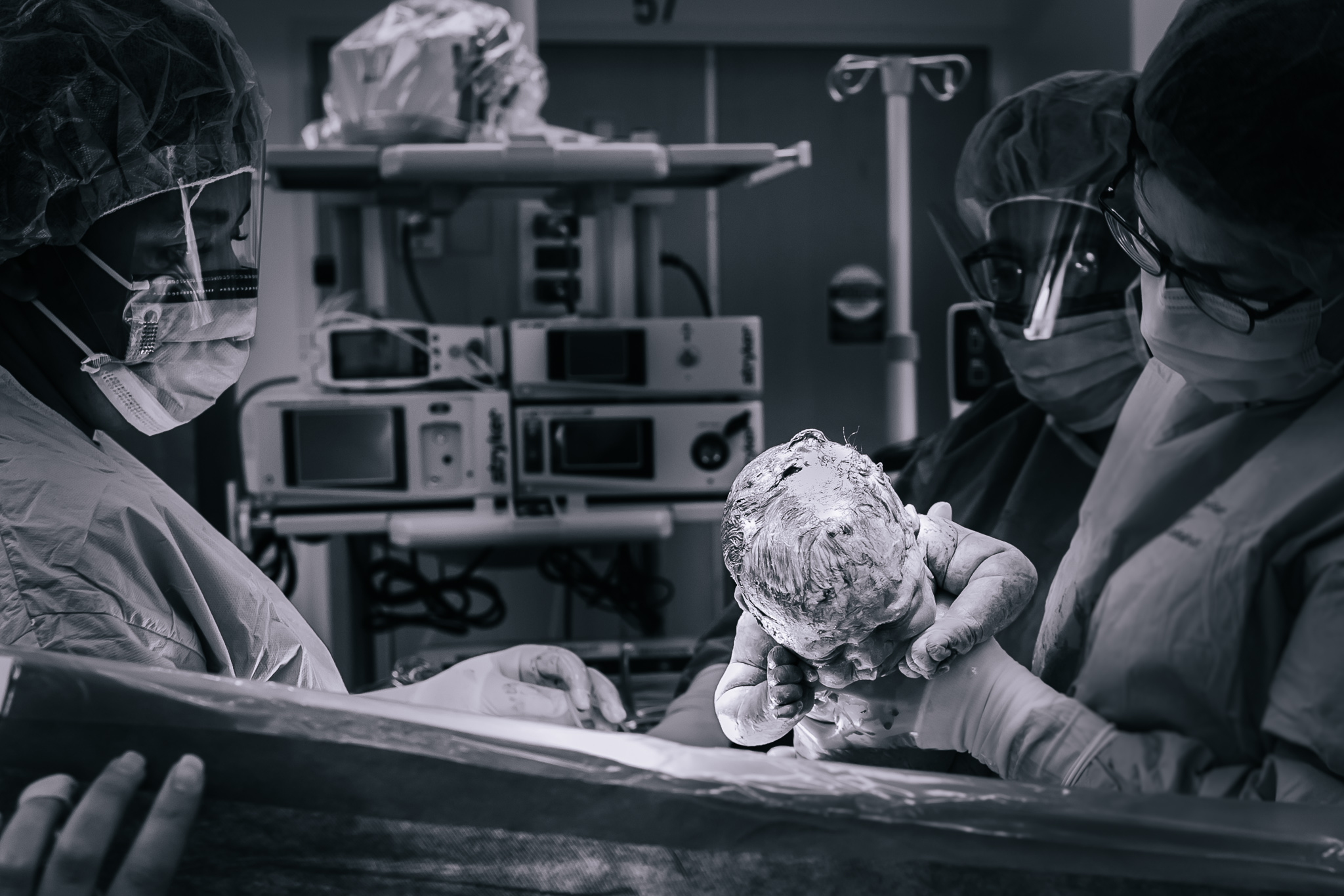 Gentle cesarean section in Buffalo, NY.