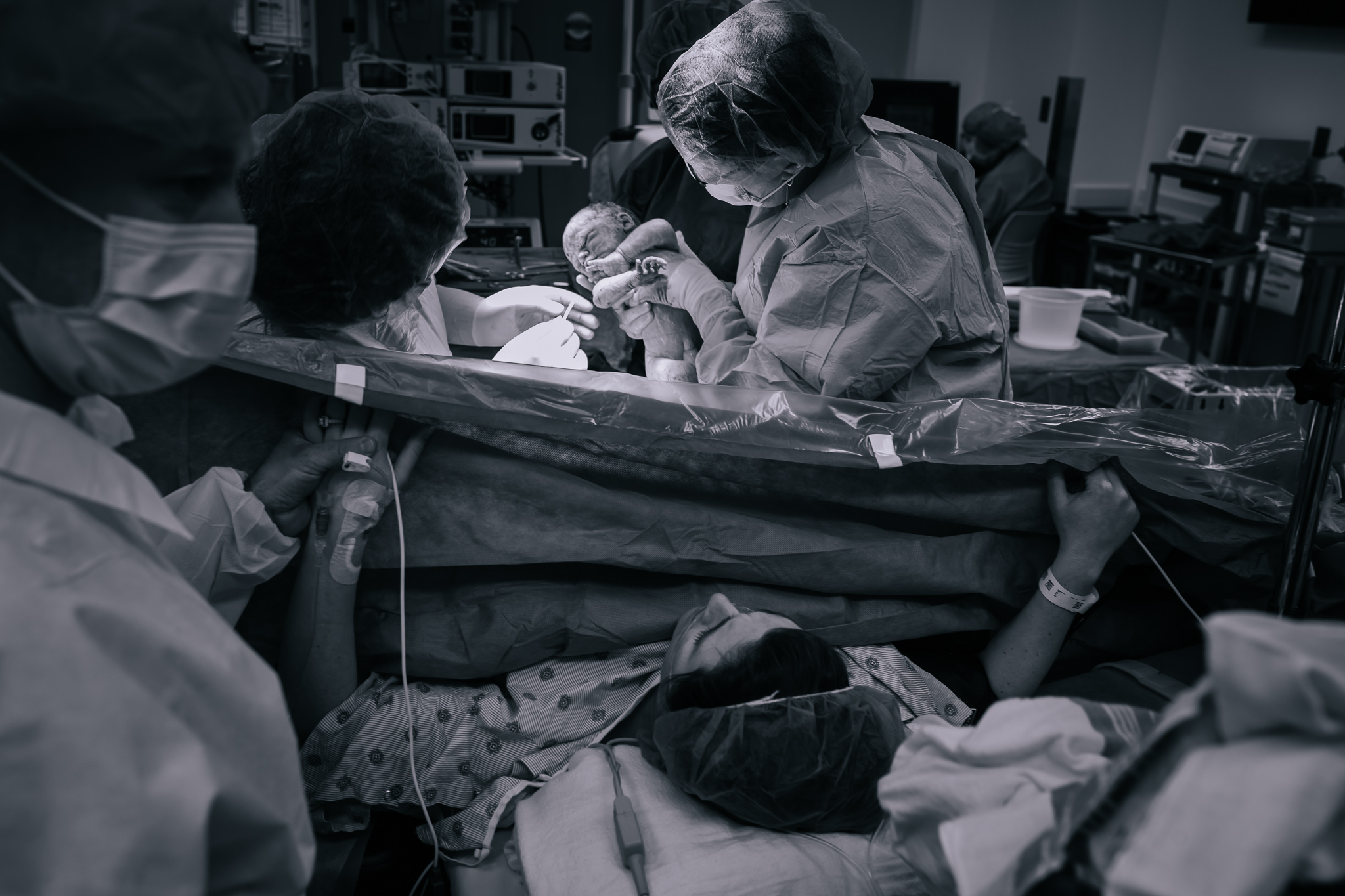 The doctors in Oishei Hospital perform c-section.
