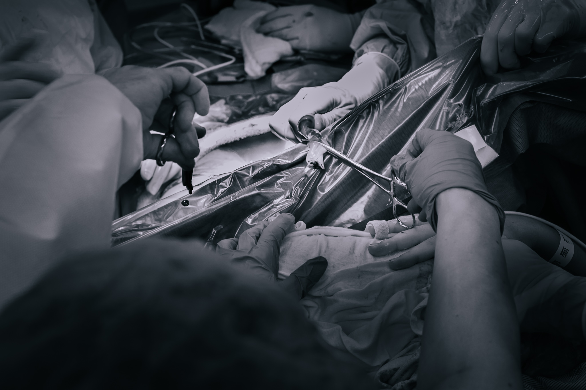 Cutting the umbilical cord in a cesarean section.