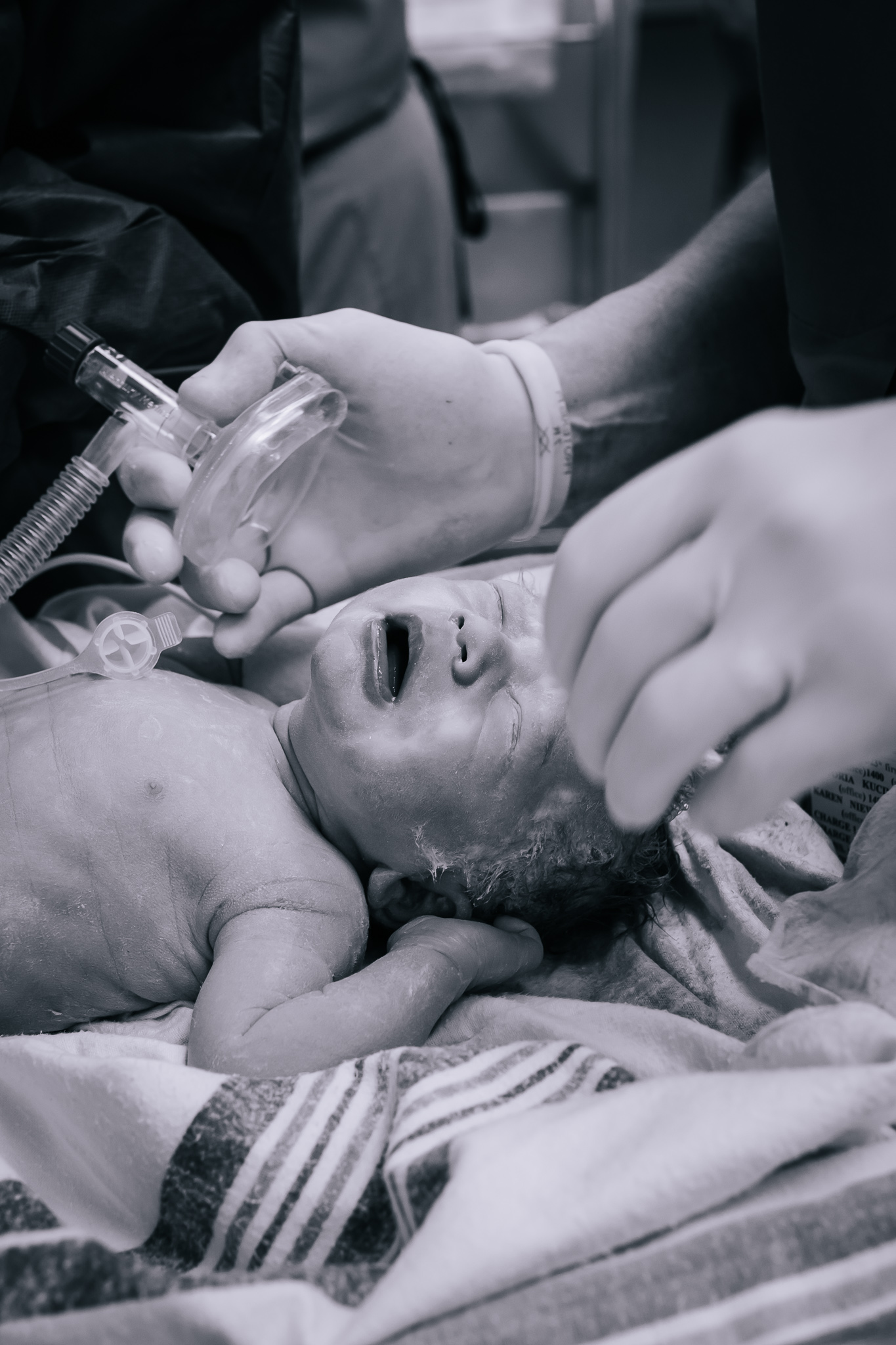 A newborn with an oxygen mask and NICU nurses.