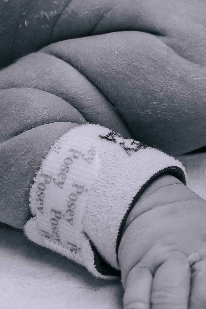 A newborn baby's arm rolls.