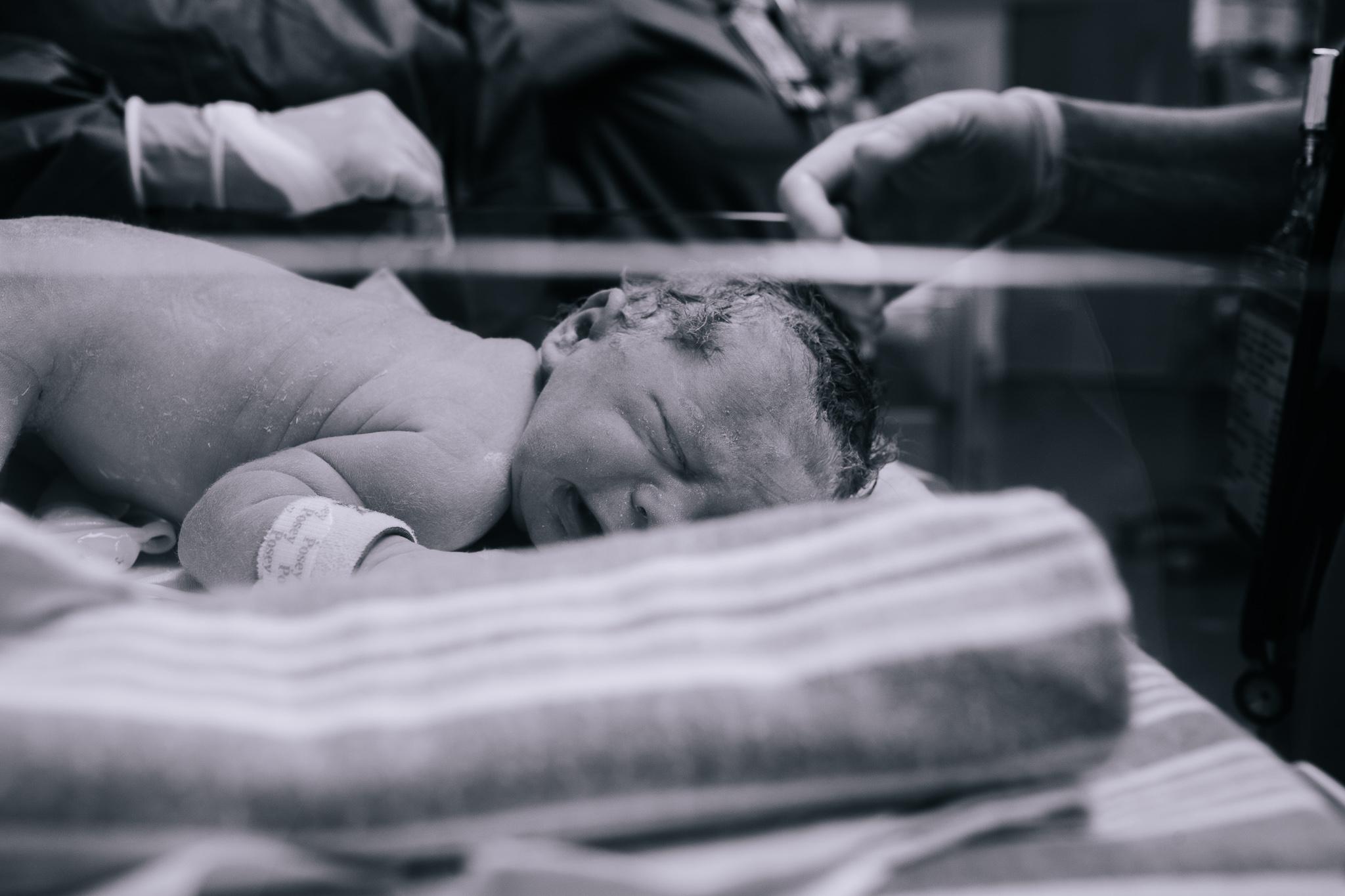 A newborn baby face down in the bassinet in the NICU.