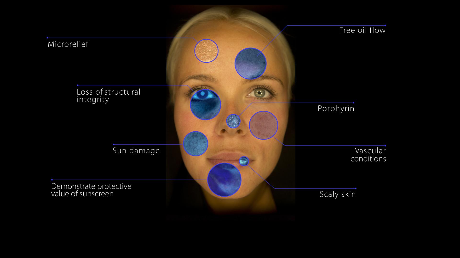 OBSERV Skin Diagnostic at SeaBreeze
