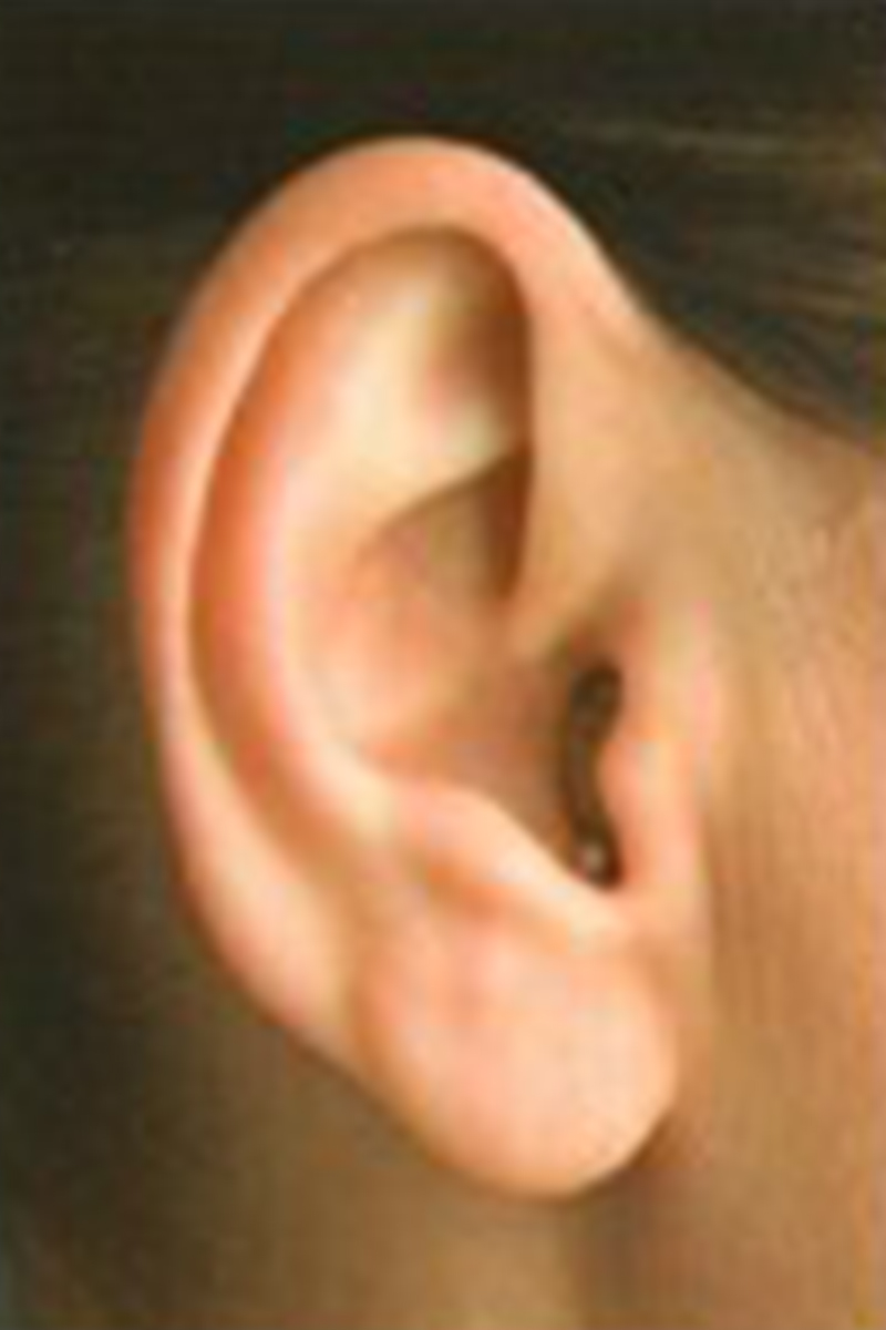 IIC-hearing-aid-the-audiology-method-colorado.jpg