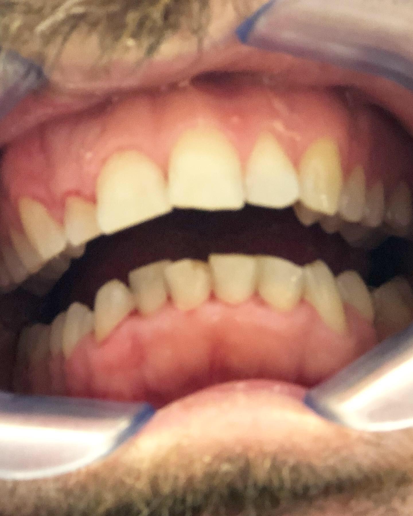 Después del dentista - Con las herramientas adecuadas, todo es posible…