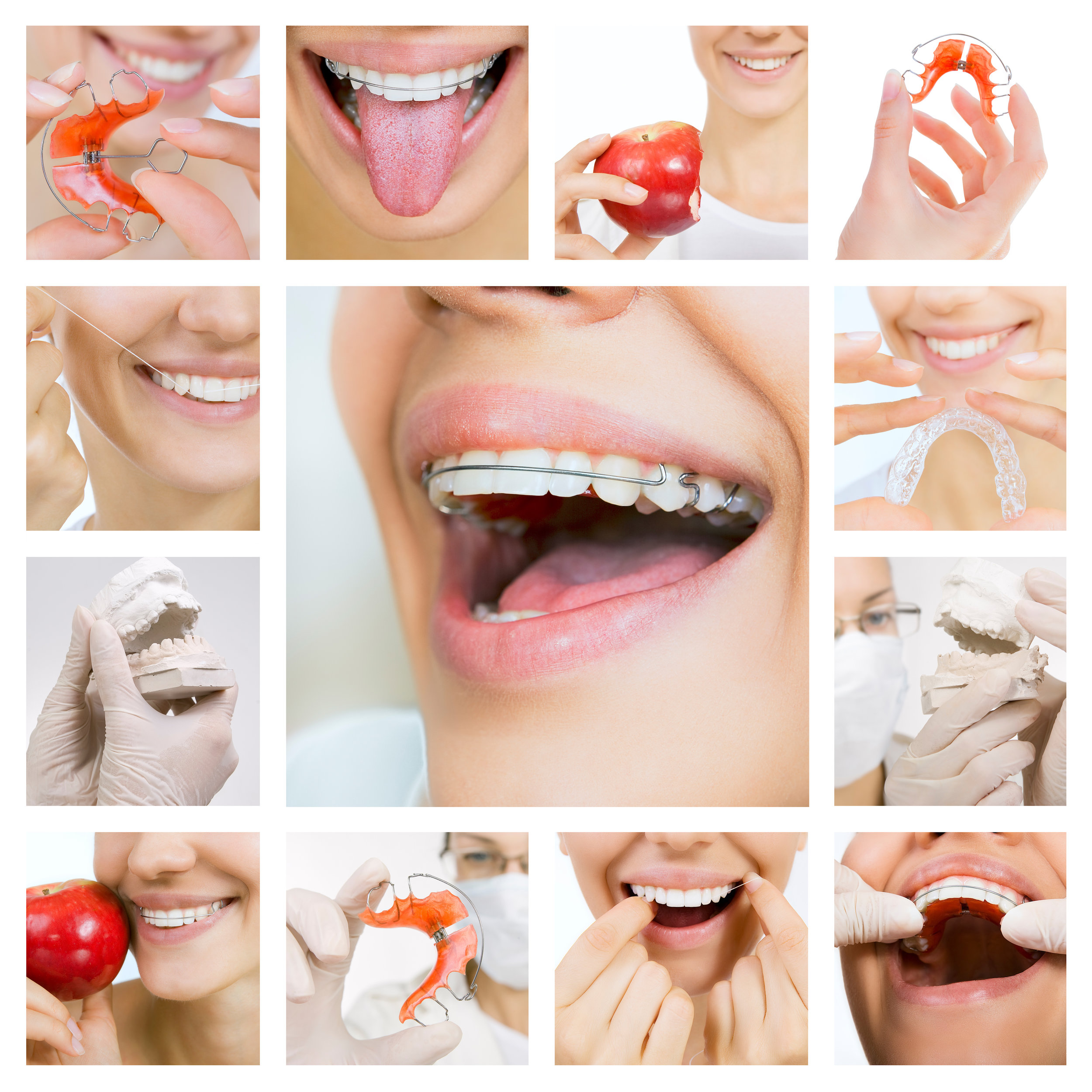 Retainer Guidelines - YAY!!! You've finally finished treatment and gotten your braces off! We want to be the first ones to congratulate you! You look like a million bucks and you're ready to go tackle the world. Just like with braces we customize your retainer. We offer every type of retention system and will make our recommendation based on your initial malocclusion and what has the greatest potential for relapse. There are a few things we want you to remember. Even though we would love to keep seeing you as often as we have been, we want you to keep those teeth and your bite as perfect as it is now! To accomplish this, your retainer must be worn every night for the first year, and then at lest 3-4 nights per week for the rest of your life. You got this, we believe in YOU!