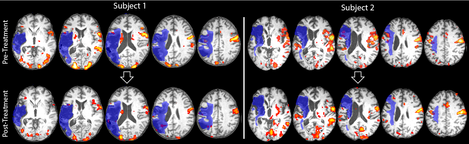fmri over time-01-website.png