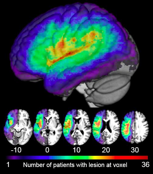 R01- right hemisphere- Revised- lesion overlap figure.jpg