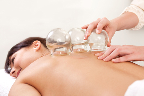 Chinese Cupping Therapy
