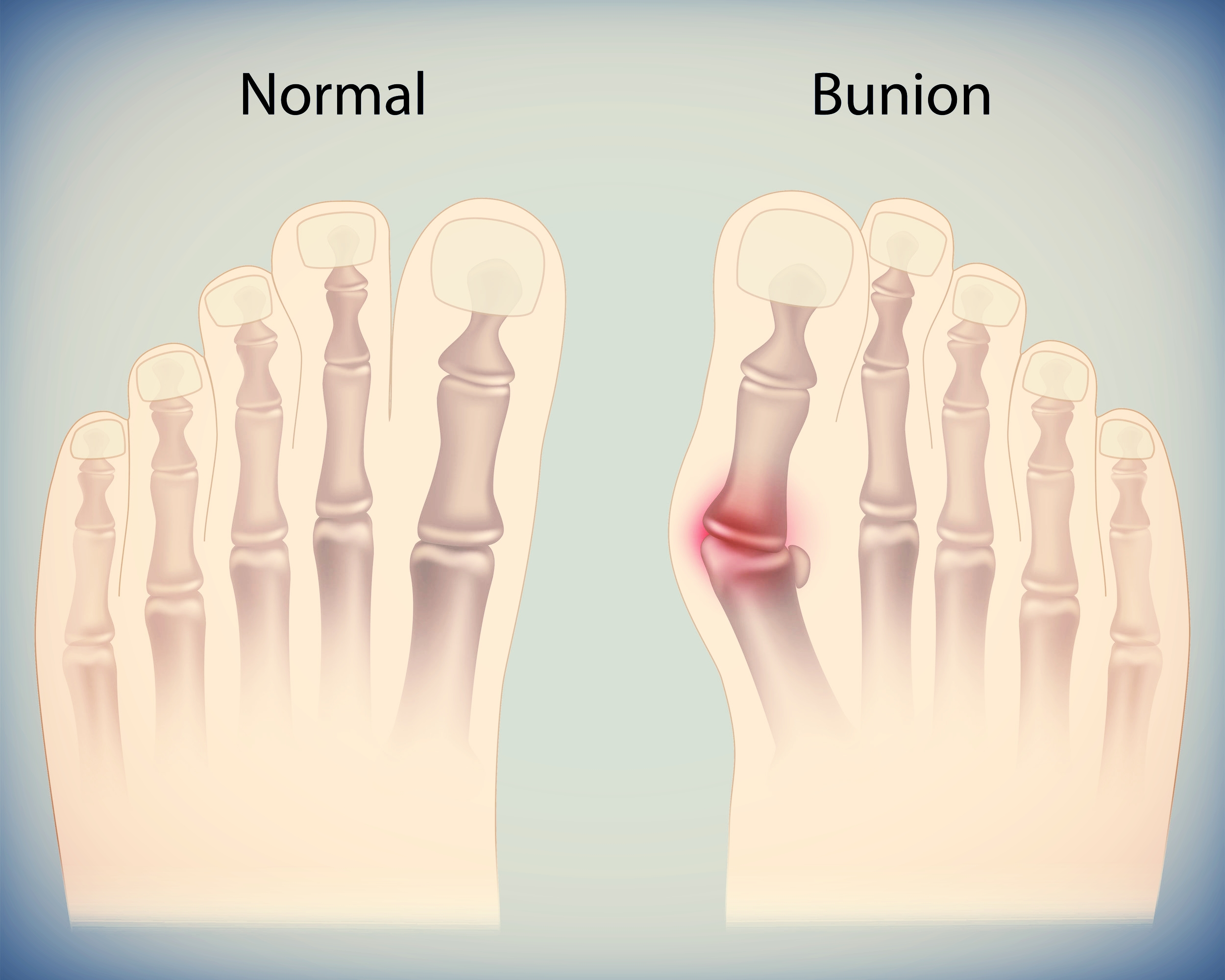 bunion orthotic watertown foot doctor