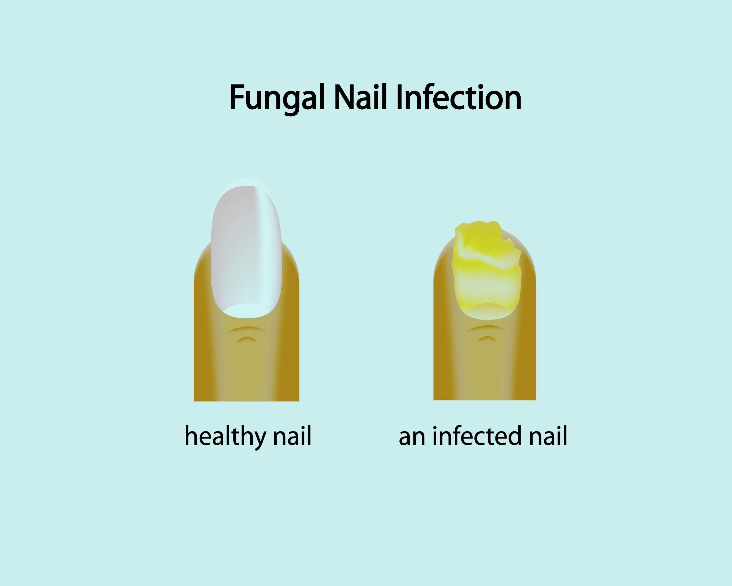 fungal toenail podiatrist watertown,ma