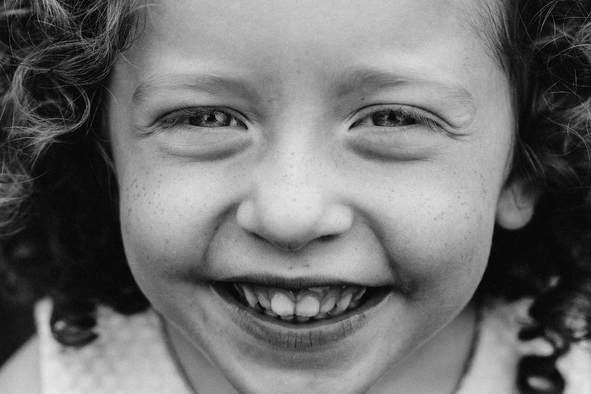 freckles-002.jpg