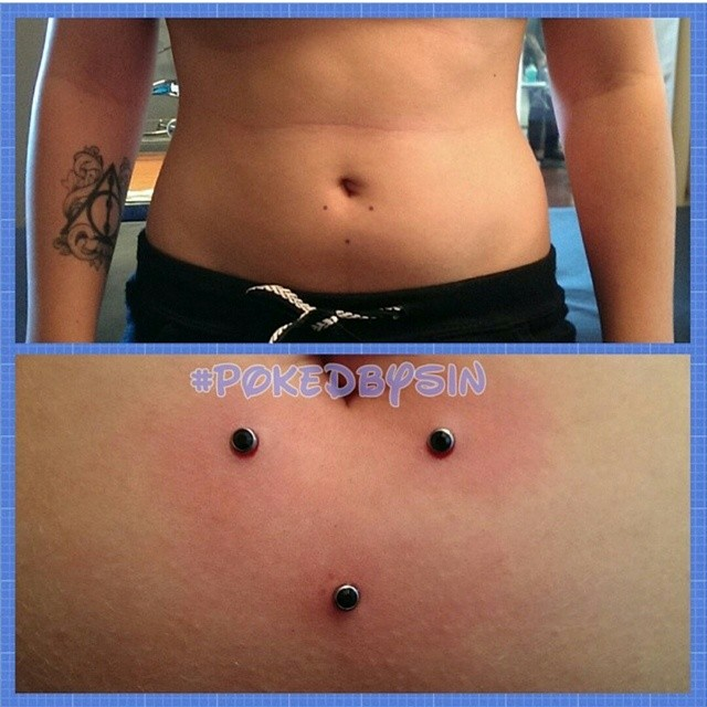 dermal belly 3.jpg