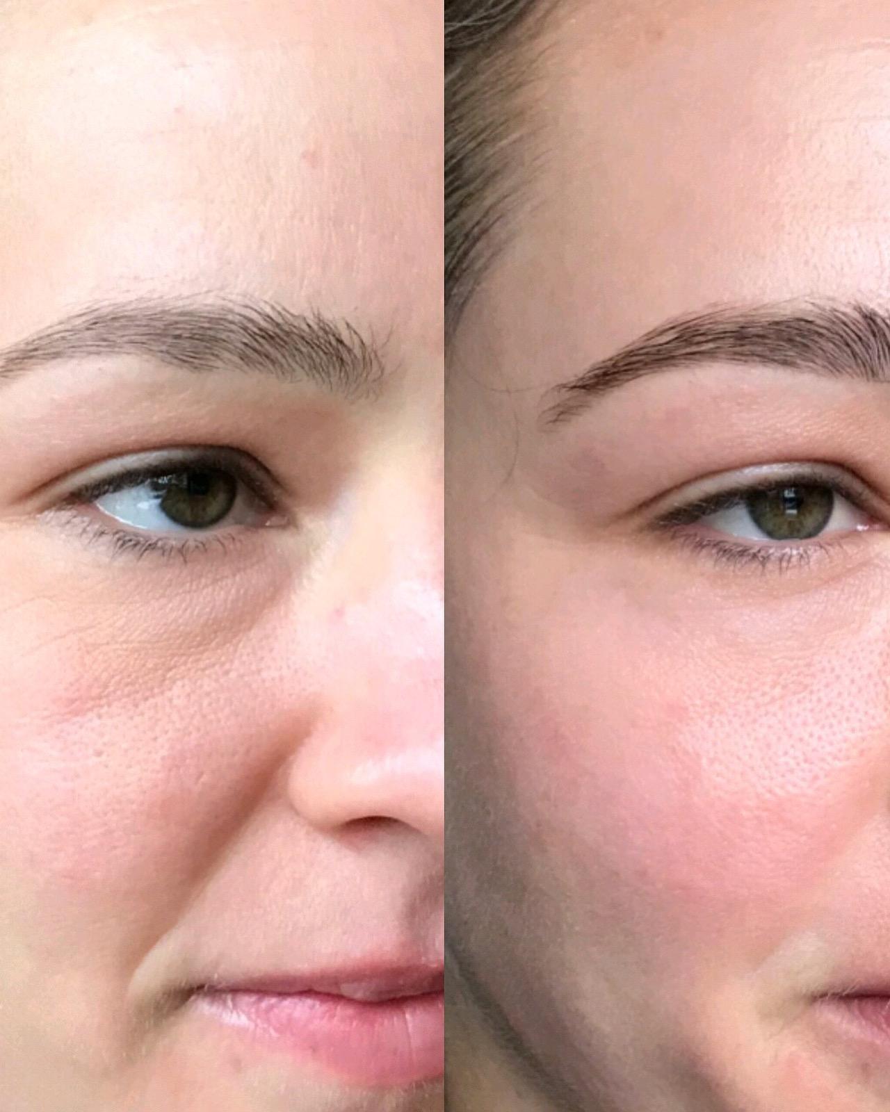 brows & under eye treatment