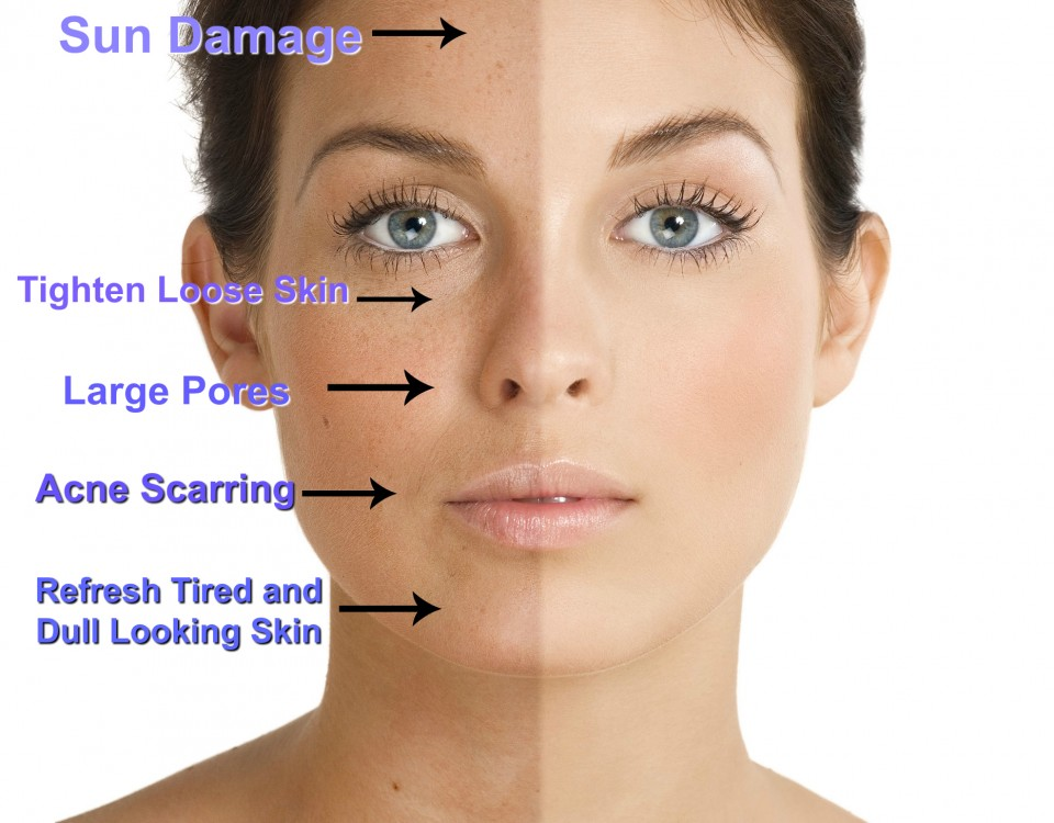Chemical Peels can help with a variety of skin issues such as fine lines & wrinkles, sun damage, acne scarring and hyperpigmentation. They can help with retexturing the skin and brightening your complexion. - *Best performed in a series and some require a specific homecare regimen for best results.